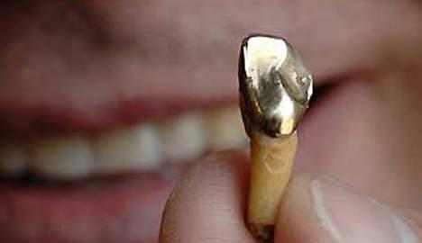 Beste Evangeliseren met gouden tanden   Goedgelovig.nl LV-97